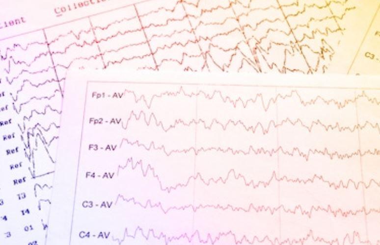 Image EEG